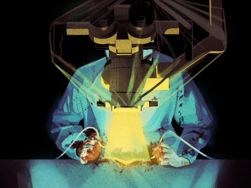 Surgery / Vice