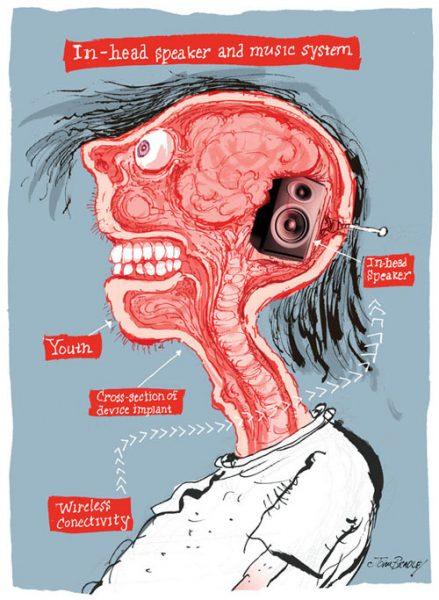 Speaker implant
