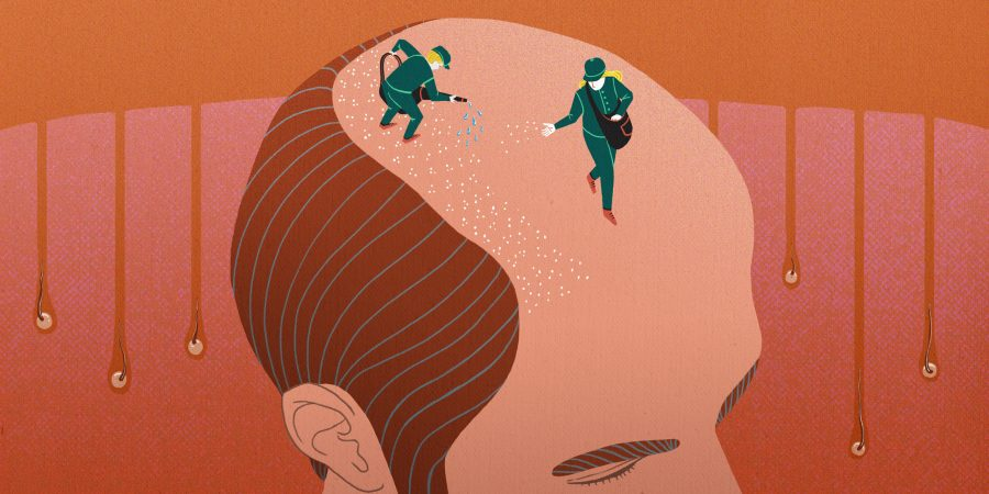 Hair loss - Göteborgs-Posten