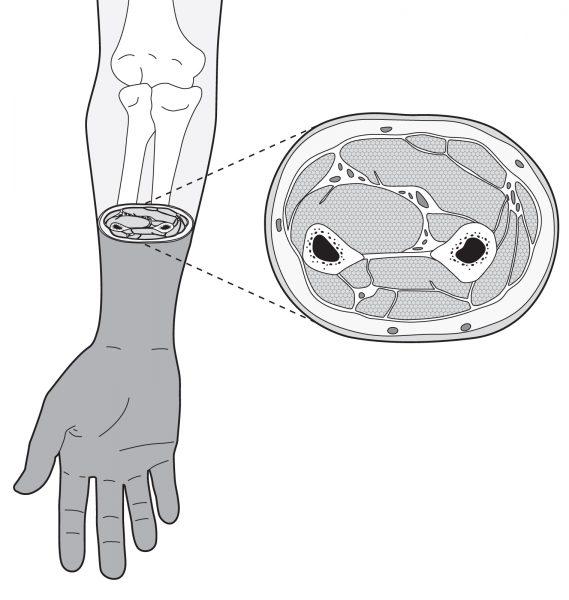 Forearm cross section