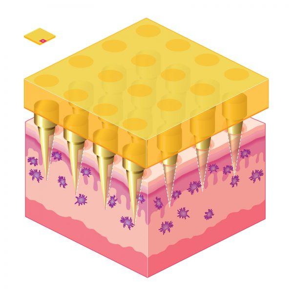 Nanopatch